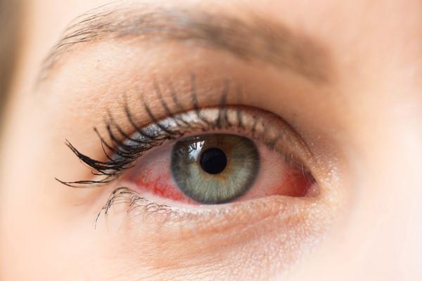 Eyes allergy season